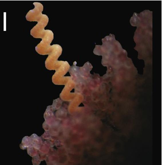 A parasitic ribbon worm.
