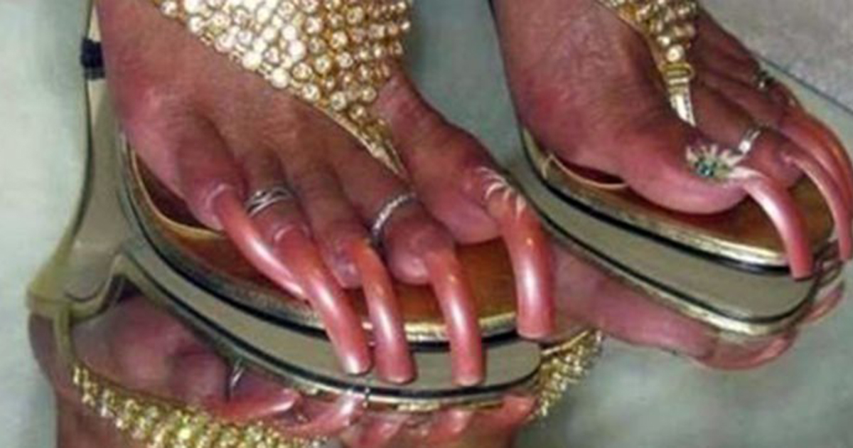 10 Extremely Long Toenails You Have To See In Order To Believe ...