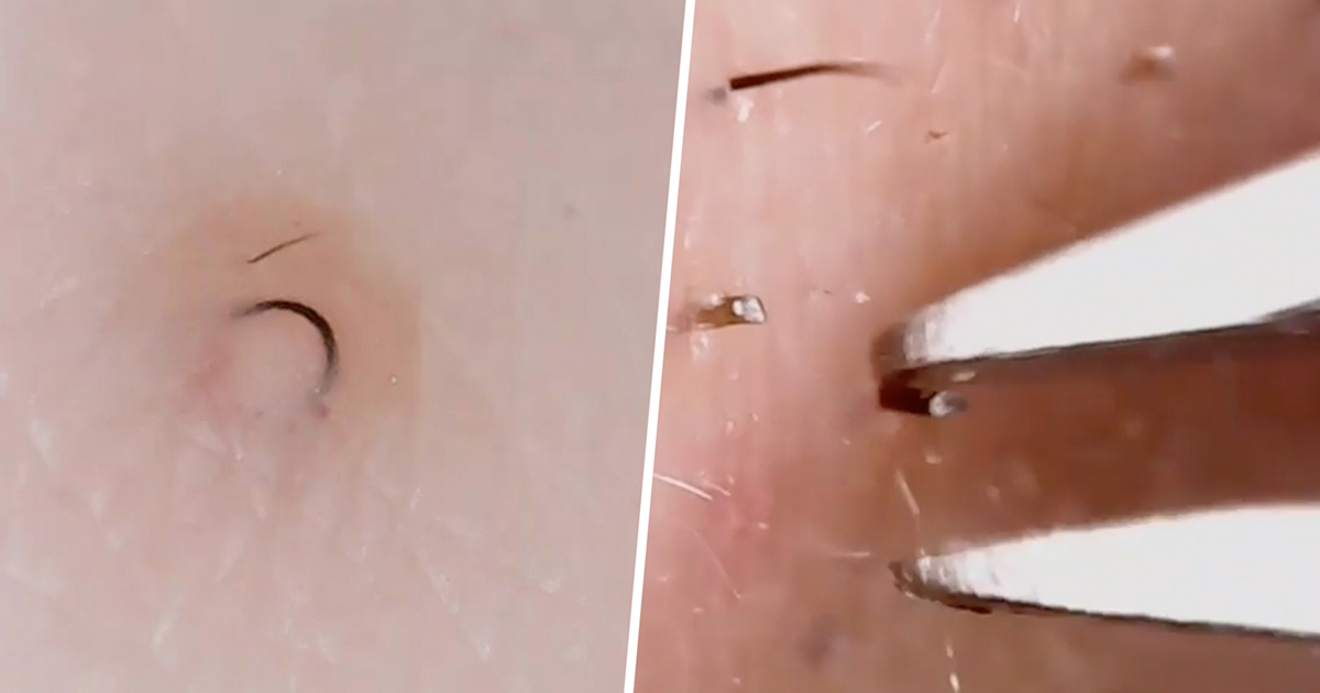 these extreme close ups of ingrown hair removal are the most