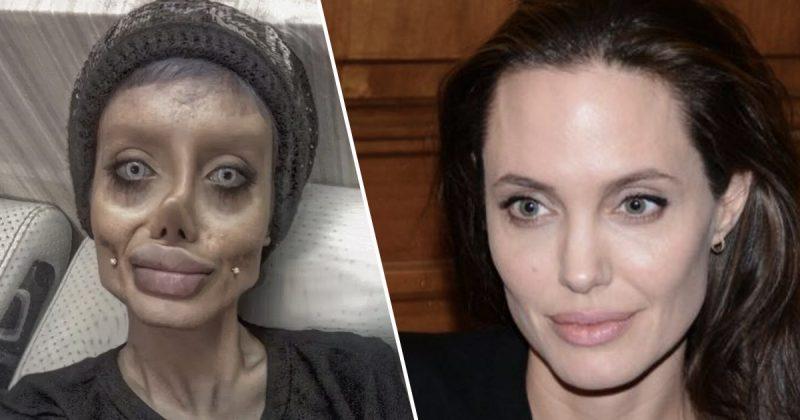 Iranian Teen Looks Like Angelina >> Teen Undergoes 50 Surgeries To Look Like Angelina Jolie ...