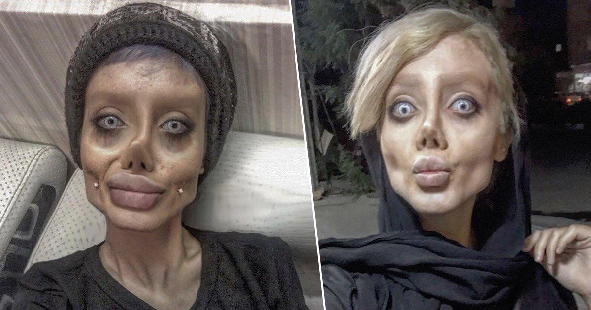 Woman Who Got Surgery To Look Like Angelina Jolie >> Teen Undergoes 50 Surgeries To Look Like Angelina Jolie ...