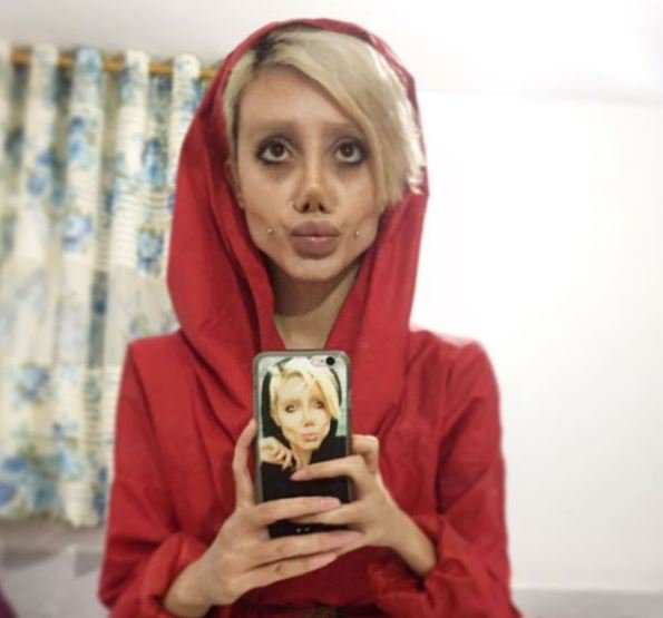 Guy Makes Shock Discovery About Woman Whos Had 50 Surgeries To Look Like Angelina Jolie Sahar 1