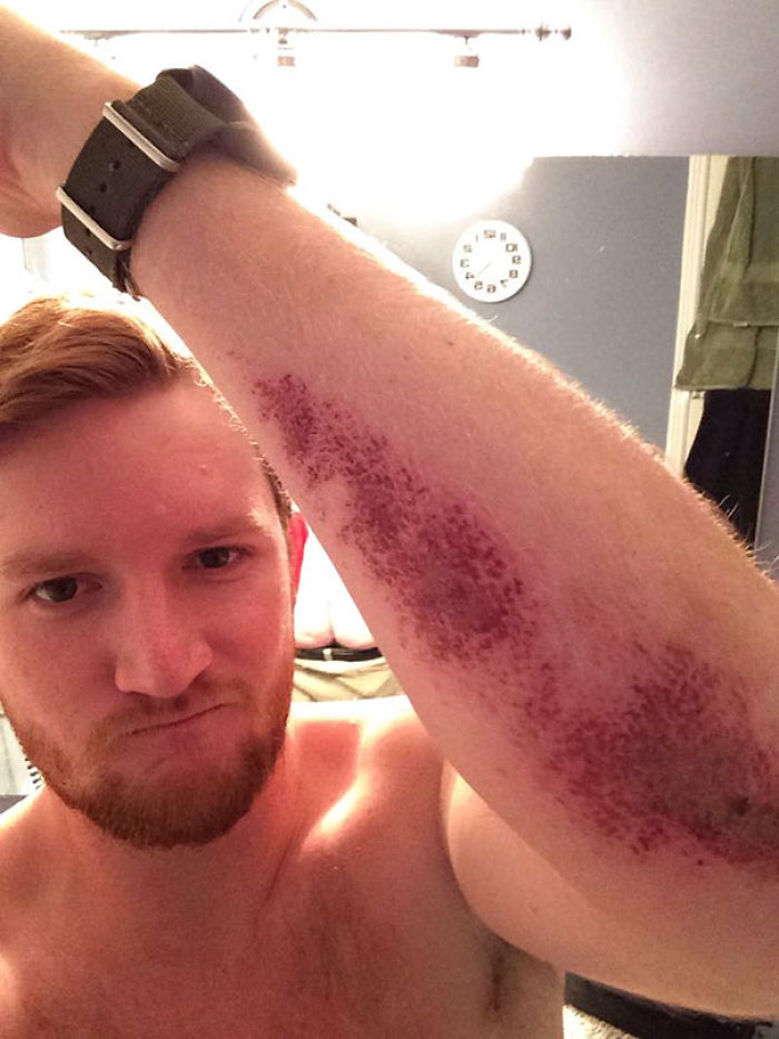 Buddy Sent Us A Picture Of His Turf-burn. When You See It
